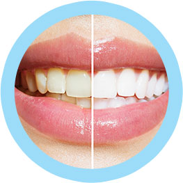 Teeth Whitening Dentist Brooklyn NY