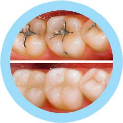 White Dental Fillings Brooklyn NY